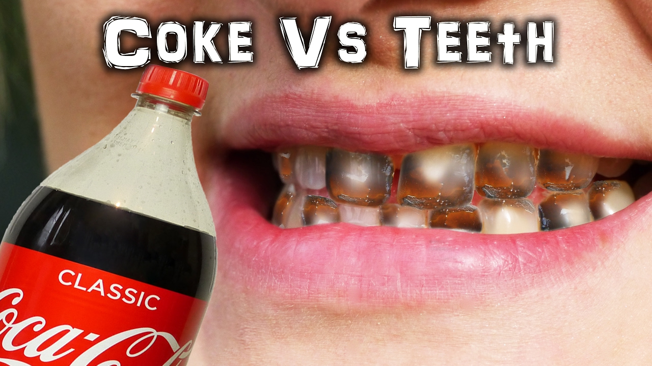 Can you PEEL a Tooth? Coke Vs Teeth thumbnail