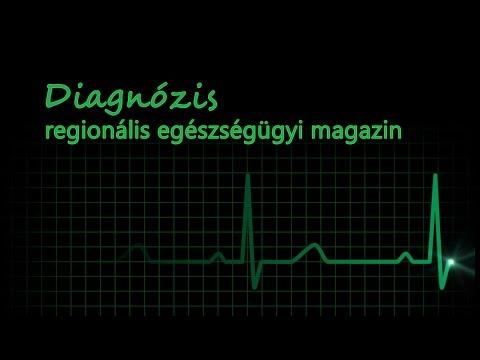 Amikor elkezdjük a gyógyszert a magas vérnyomás