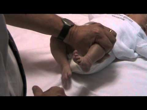 Osteochondrose der Lendenwirbelsäule bei der Behandlung von Schwangeren