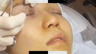 Double Eyelid Stitching (DST) @ Premier Clinic