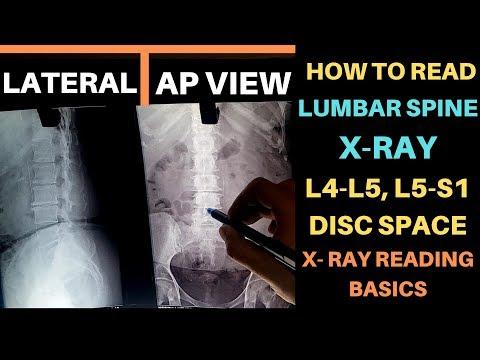 Deformáló láb artrózis 2 fokos kezelés