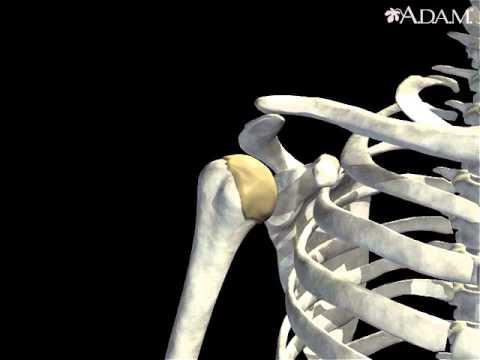 Dolor de espalda curvada