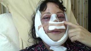 Facial Plastic Surgery Recovery: Day 1
