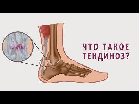 Что такое тендиноз и как он лечится?