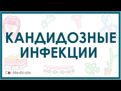 Кандидозные инфекции - кратко причины, симптомы, диагностика, лечение