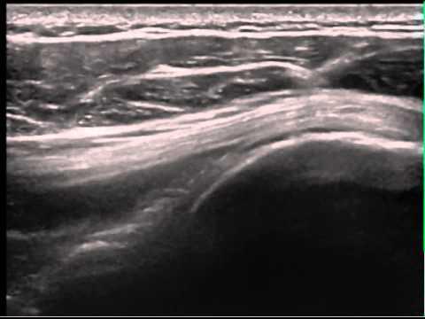Mal di schiena nella zona dei reni dopo il sonno