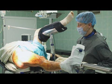 Закрытый блокируемый интрамедуллярный остеосинтез бедренной кости
