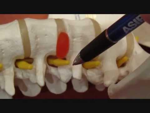 Artroskopia kolana kopiec Ilizarowa