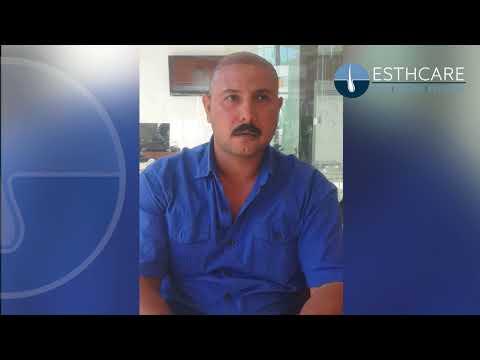 زراعة الشعر في تركيا | مشفى إست كير | أطباء بخبرة 12 عام