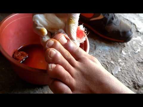 Naftifina el hidrocloruro del hongo de las uñas