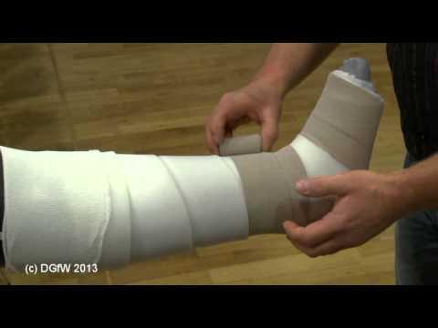 Gelenkschmerzen an seinem Bein, wenn nach dem Bruch gehen