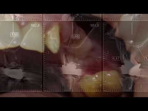 НКР с помощью титановой сетки и отсроченная имплантация