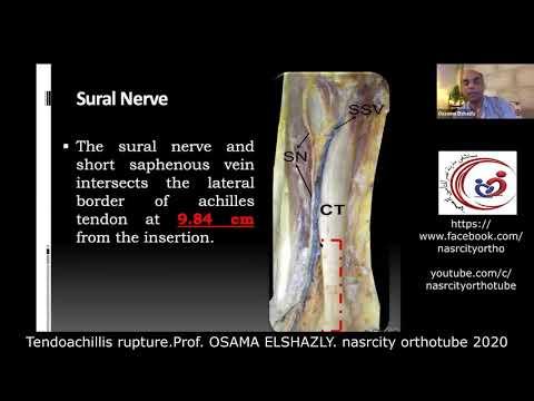 Articulația genunchiului și tratamentul acesteia