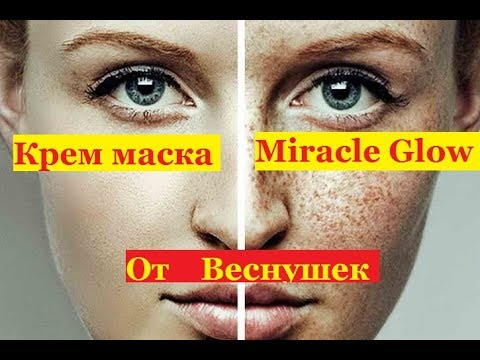 Пигментация кожи при варикозе
