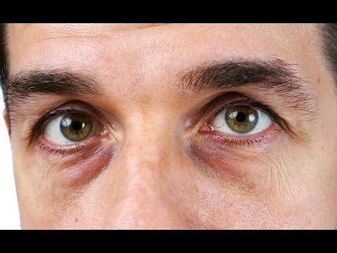 Как избавится от темных кругов глаз