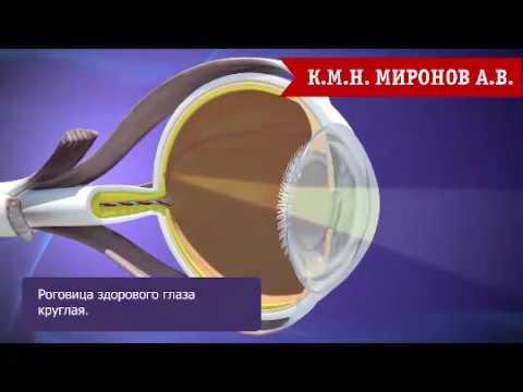 Операция по восстановлению зрения в санкт петербурге