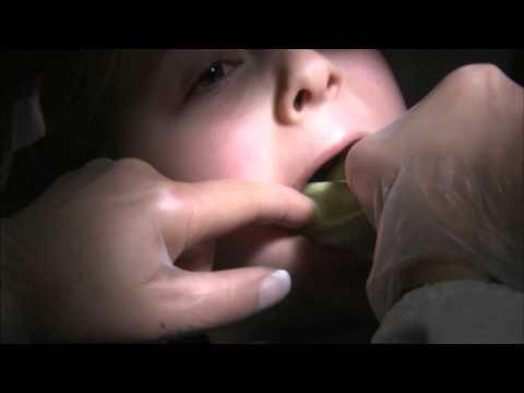 Vermox tabletta ara