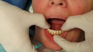 Implant Overdenture - Ankylos Syncone Protocol