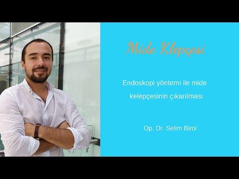 Endoskopiyle mide kelepçesi çıkartma. Endoscopic Gastric Band removal. Op. Dr. Selim Birol, Istanbul