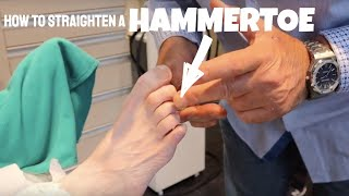 HOW TO STRAIGHTEN A HAMMERTOE