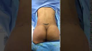 Dr. Reynolds - Brazilian Butt Lift after injection
