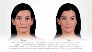 Juvederm for Lips - Catherine Story