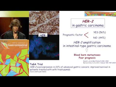 Endometrial cancer estrogen