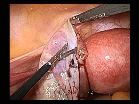 Operazione su rimozione di una vena da una gamba di conseguenza
