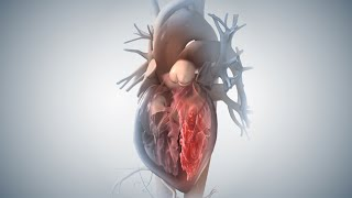 Acute Coronary Syndrome and Heart Attack