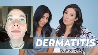 Perioral Dermatitis and Acne Skincare Routine for Jessie!