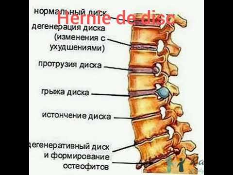 Gâscă și dureri articulare