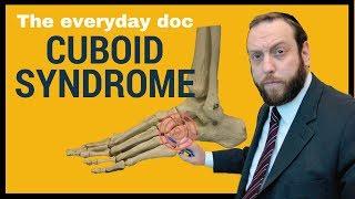 CUBOID SYNDROME or Cuboid subluxation