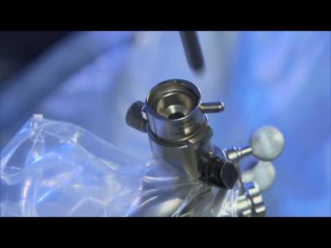 Falscher Gelenk Unterarm Code in ICD-10