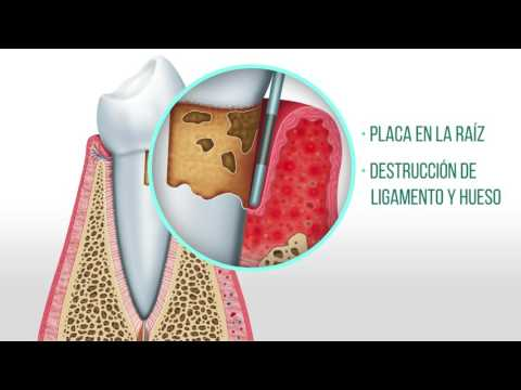 Sistólica-diastólica grado hipertensión 1