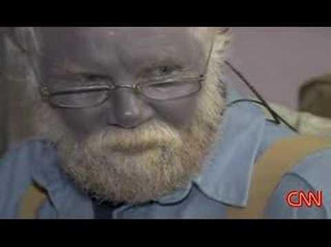 Wo in Ryazan Prostatamassager kaufen