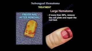 Subungual Hematoma - Everything You Need To Know - Dr. Nabil Ebraheim