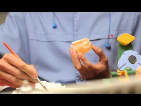 Протез на 4 имплантах при полной адентии