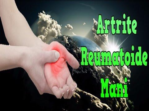 Malattia comune nelle infezioni urogenitali