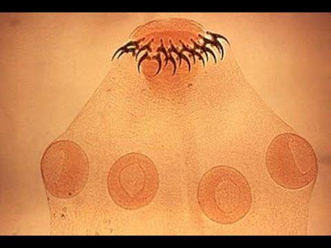 Hasi ganglion rák