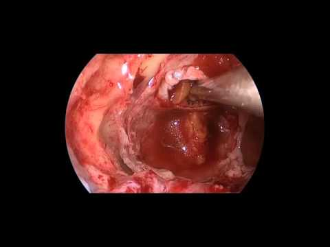 Endoscopic Endonasal Pituitary Macroadenoma Surgery