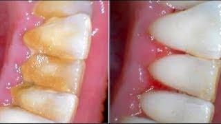 Устраните КАМНИ НА ЗУБАХ за 😉5 мин | Стоматологи ❌НИКОГДА не Скажут об Этих Рецептах
