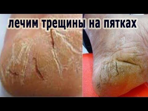 Boltuschka von gribka auf den Beinen