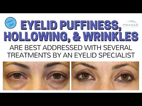 Lunas para sa mga wrinkles sa paligid ng mga mata photo