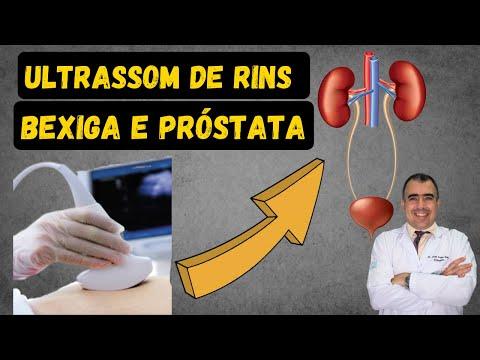 Lantibiotico migliore per linfiammazione della prostata