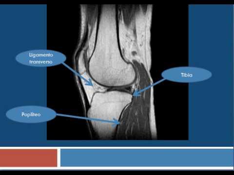 Deformando la osteoartritis de la rodilla es