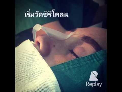 การผ่าตัดสำหรับการรักษาเส้นเลือดขอด