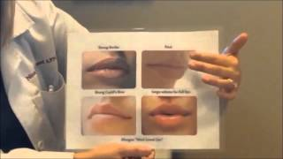 Characteristics of the lips and choosing the right filler.