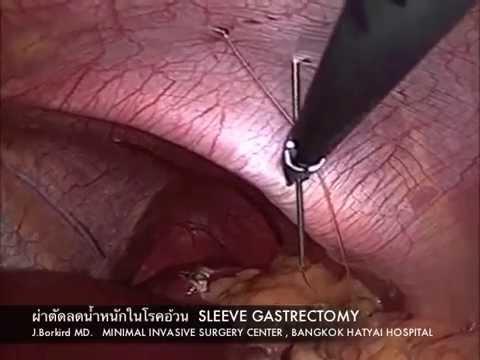 อาการลิ่มเลือดอุดตันหลอดเลือดแดง basilar