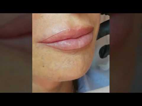 Sintomi di dermatite di atopic e trattamento