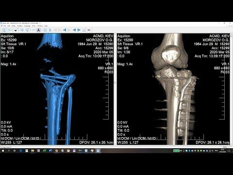 Перелом мыщелка большеберцовой кости (часть 4 из 5)